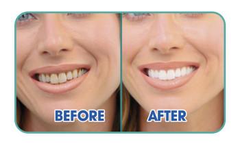 Starlyf Ultraschall Zahnreiniger - Ersatzaufsätze
